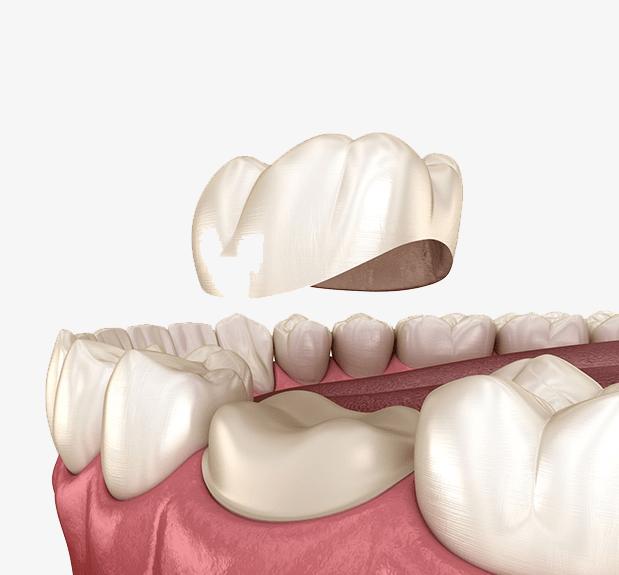Treatment - The Holland Park Dentist