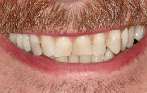 Before - The Holland Park Dentist
