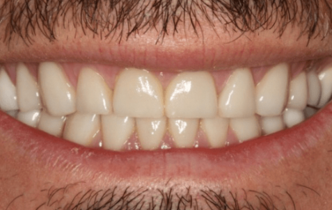 After - The Holland Park Dentist